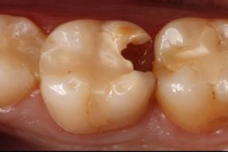 Caries Antes